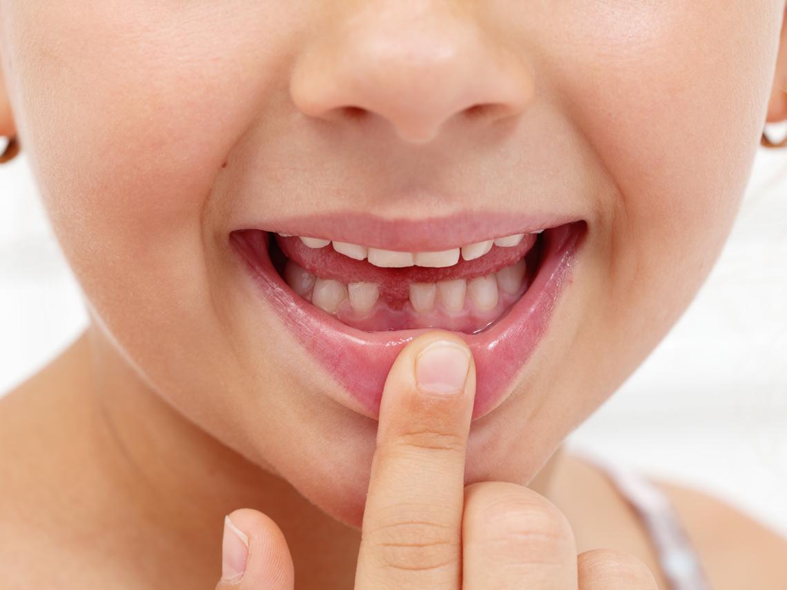 Primer diente de leche caído