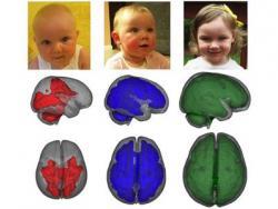 La lactancia materna potencia el desarrollo del cerebro de los bebés