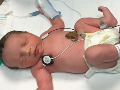 ¿Puede un bebé nacer dos veces? Esta pequeña sí