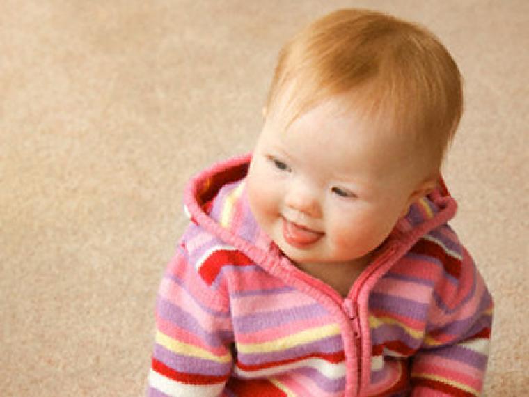 bebes con sindrome de down recien nacidos caracteristicas