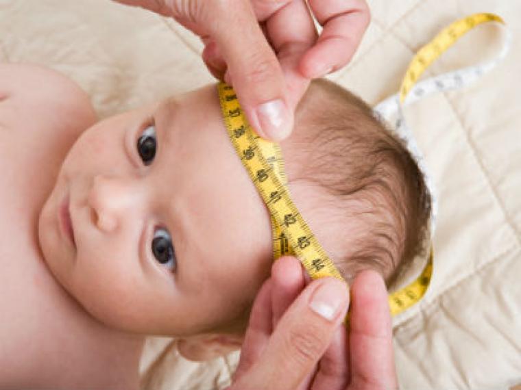 ¿Por qué le miden la cabeza al bebé?