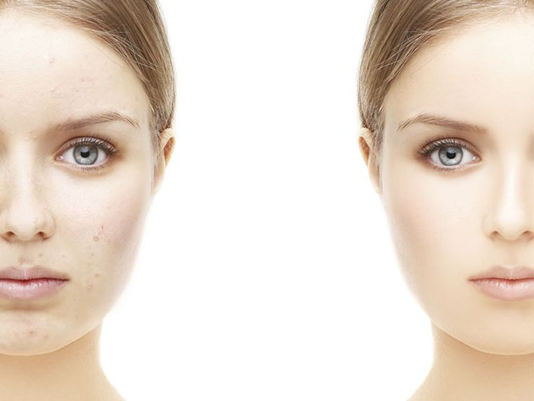 pieles grasas acne