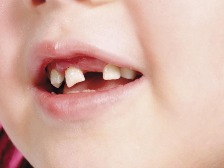 ¿Cuándo se caen los dientes de leche y aparecen los permanentes?