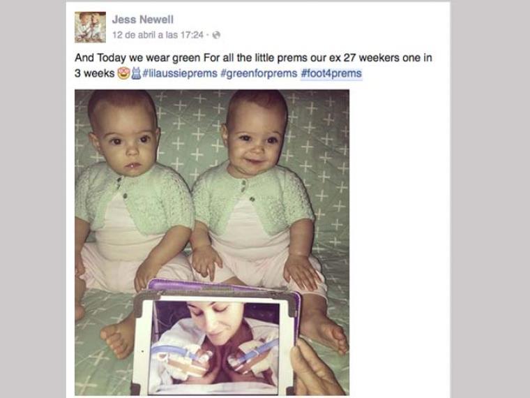 facebook_prematuros