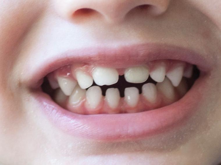 Afrontar un golpe en un diente de leche a una edad temprana