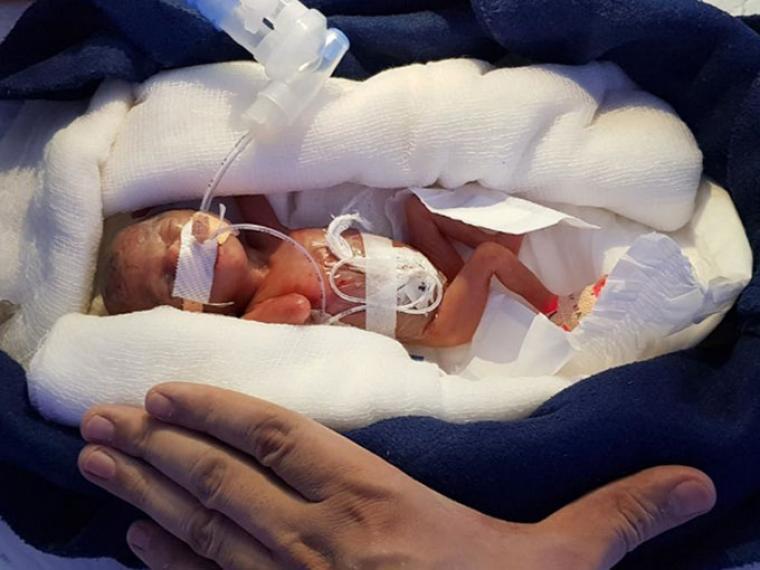 Bebe milagro Saeta