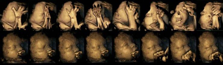Así son las caras de un bebé en el vientre materno cuando su madre fuma