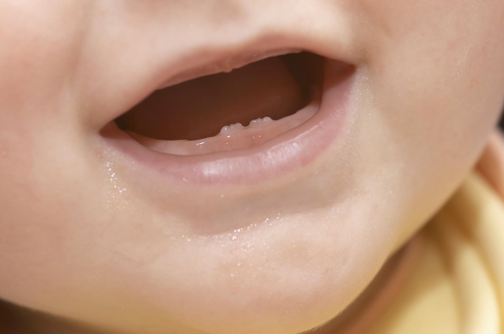 Calendario de erupción de los dientes de leches
